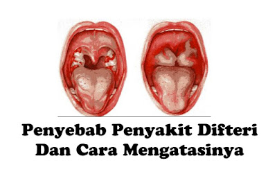 Penyebab Difteri