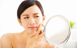 10 Ways to Eliminate Acne with Natural Materials