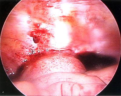 黃文貞醫師: 腹腔鏡輸卵管造口手術
