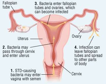 Pelvic inflammatory disease (PID) is an infection of the upper (internal) female reproductive organs