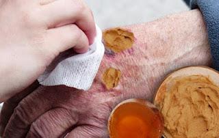 remedy-reduce-injury-scars-in-hindi, injury- scar- removal, चोट -से -लगे- निशान- मिटाने- के- घरेलु- नुस्खे, chot ke ghav mitane ke upay