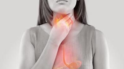 Gastro_Esophageal_Reflux_Disease_GERD