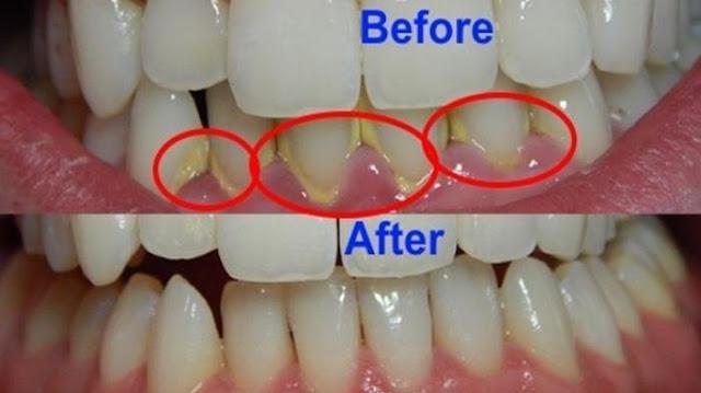 Cara Membersihkan Karang Gigi Dengan Cepat