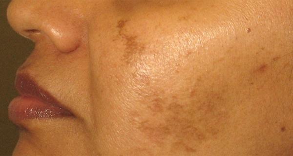 petele pigmentare pot fi estompate sau chiar eliminate prin remedii naturiste