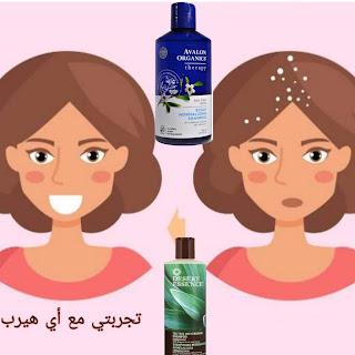 خطوات للتخلص من قشرة الشعر