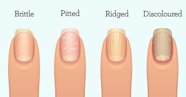 brittle nail, pitted nail, ridged nail, discoloured nail