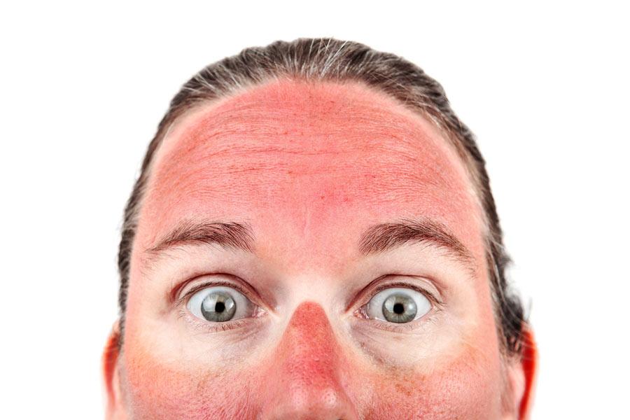 Macam mana nak kurangkan kulit dari kena sunburn? Meh buat 7 petua ini.