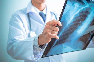 WHAT IS METASTATIC MESOTHELIOMA ?