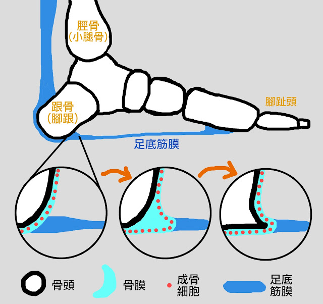 好痛痛 解剖列車 跟骨骨刺 筋膜 足底筋膜 骨膜 成骨細胞