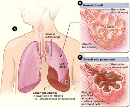 What is Pneumonia and its Symptoms