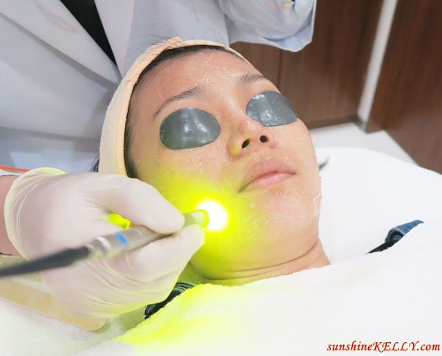 Dual Yellow & Spectra Q-Switched Laser Treatment Experience and Review