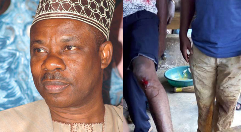 """24hrs after Amosun called them """"senseless,"""" Ogun NLC workers attacked by thugs (graphic photos)"""