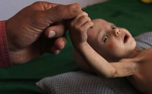 Yemen humanitarian crisis 2020