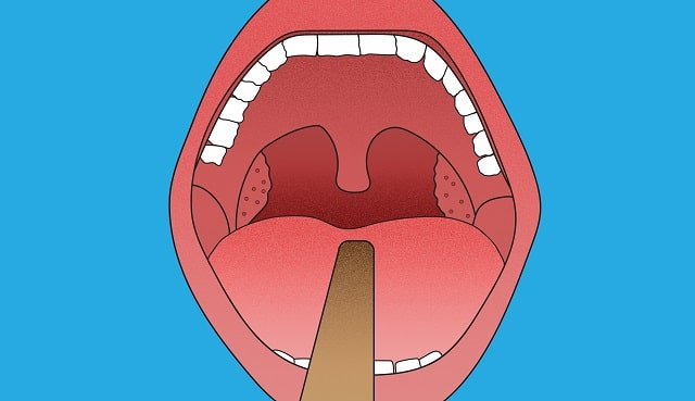 facts tonsillectomy should get tonsils removed truth about tonsil removal