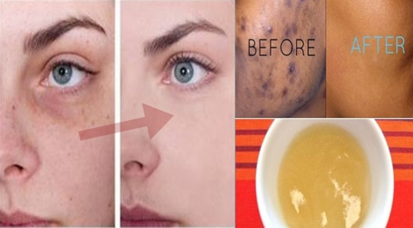 These Remarkable Homemade Remedies Will Help You Get Rid Of Black Spots On Your Face Almost Instantly