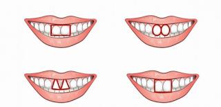 Δείτε τι αποκαλύπτει το σχήμα των δοντιών σας για τον χαρακτήρα σας! Σίγουρα ΔΕΝ το περιμένατε…