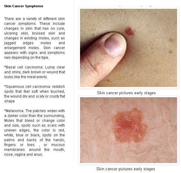 Early Pictures Of Skin Cancer Skin Cancer Advices