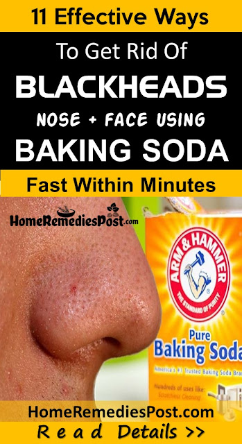 Baking Soda For Blackheads, How To Get Rid Of Blackheads, Home Remedies For Blackheads, How To Remove Blackheads, Blackheads Treatment, How To Treat Blackheads, How To Get Rid Of Blackheads Fast, Blackheads Home Remedy, How To Cure Blackheads, How To Take Blackheads Out, Blackheads Remedies, Treatment For Blackheads,