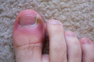 Nail Infection I নখের কোনা ওঠা বা নখকুনির সমস্যা থেকে স্থায়ী ভাবে মুক্তির সহজ উপায়।