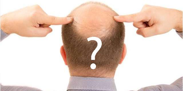 saç ekimi soru cevap, saç ekimi ile ilgili merak edilen sorular, saç ekimi hakkında sıkça sorulan sorular, KahveKafe.Net