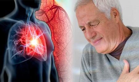 طرق متعددة لعلاج أمراض القلب تعرف عليها
