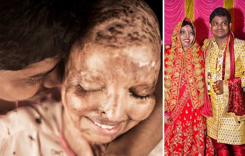 Woman doused in acid after rejecting proposal at 15 marries man she met in hospital [photos]