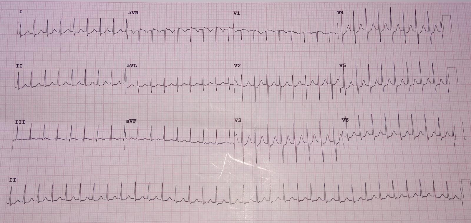 Cardiology Window Psvt Avnrt