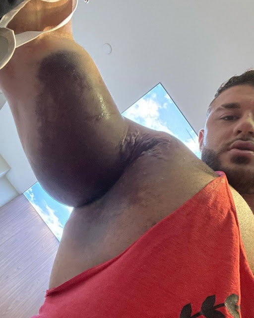 Bodybuilder's Pec Muscle Torn From Bone During 220kg Bench Press