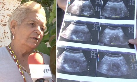 66 year old woman pregnant