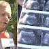 70-Year-Old Who Claims She Is PREGNANT Will Become World's Oldest Woman To Give Birth If It Proves True