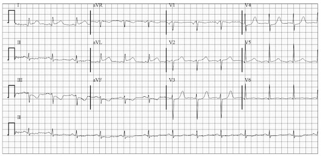 ECG of Lateral wall MI - STEMI