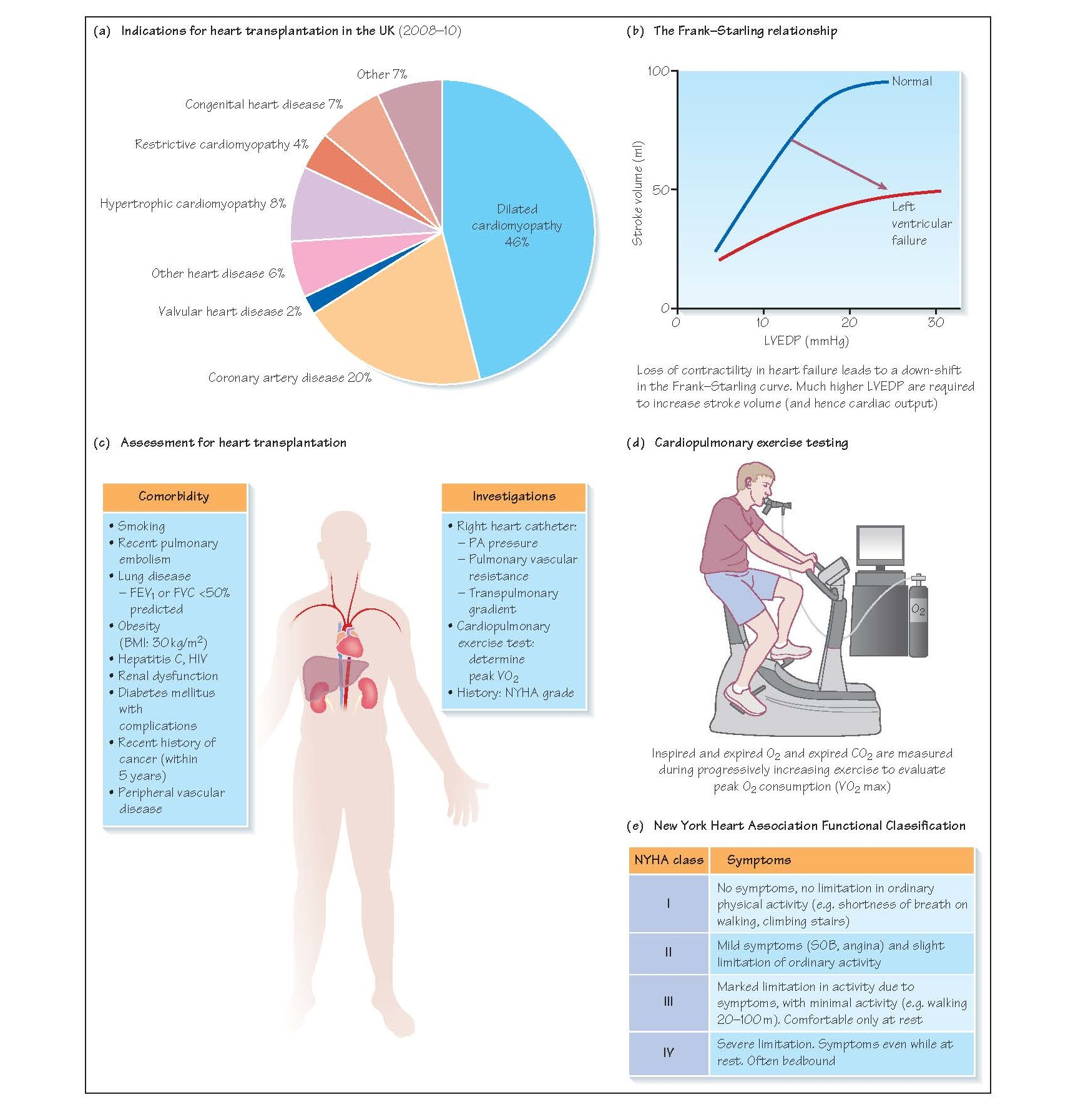 Assessment For Heart Transplantation