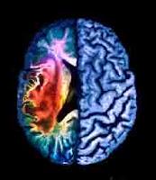 """<Imgsrc =""""Imagen-de-resonancia-magnética-de-cerebro-con-infarto.jpg"""" width = """"220"""" height """"254"""" border = """"0"""" alt = """"Resonancia de un infarto cerebral"""">"""