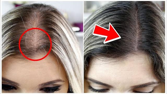 A queda de cabelo é um problema que atinge a maioria das mulheres e pode ser facilmente percebida ao pentear os fios ou durante a lavagem da cabeça no banho,  mas isso pode ser resolvido com apenas algumas dicas para você colocar em prática no dia a dia. Primeiro de tudo nunca durma com o cabelo molhado, pois essa prática pode criar fungos no seu cabelo e ainda deixar eles mais frágeis para quebrar as pontas. Sempre lave os cabelos, pois deixar a raiz do cabelo limpa, impede que a seborreia que fica no couro cabeludo aumente a queda de cabelo.  Essa é uma forma muito eficiente de combater a queda, então nada de ficar uma semana sem lavar o cabelo. Se possível lave diariamente, pois assim você terá o seu cabelo limpo, sedoso e sem queda. É muito importante se alimentar bem e consumir bastante proteína e ferro para ter um cabelo forte e saudável. O cabelo é feito de uma proteína chamada queratina, que é a mesma composta nas unhas.