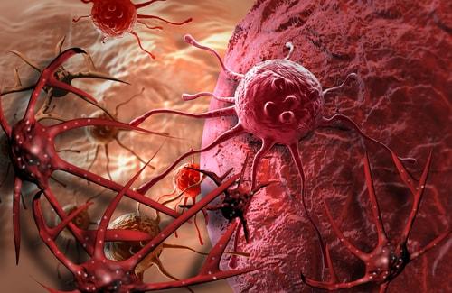 cancer ayurveda management
