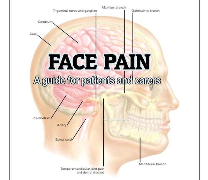 PDF: Face Pain - A guide for patients and carers