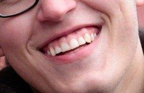 Gingivitis, enfermedad periodontal, encías, sangrado, piorrea
