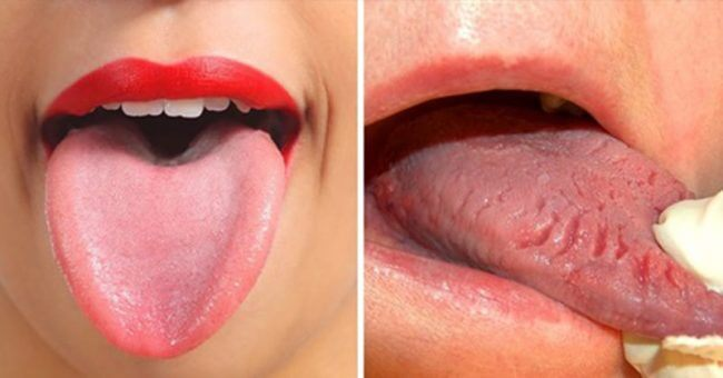 7 Things Your Tongue Is Trying To Tell You About Your Health