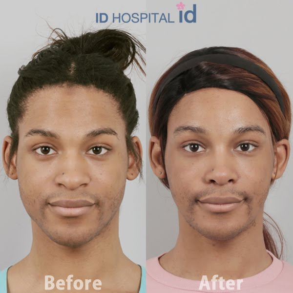 Facial Feminization Result Surgery - Nude Photos-1057