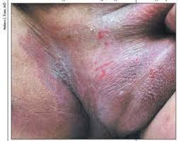 Inilah Penyebab dan Cara Mengatasi gatal selangkangan Ampuh