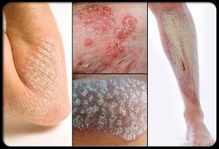 Kulit Gatal Tidak Tertahankan Dan Obat Alami Dermatitis