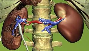 Cara Mengobati Gagal Ginjal Akut   Obat Jantung Bengkak ...
