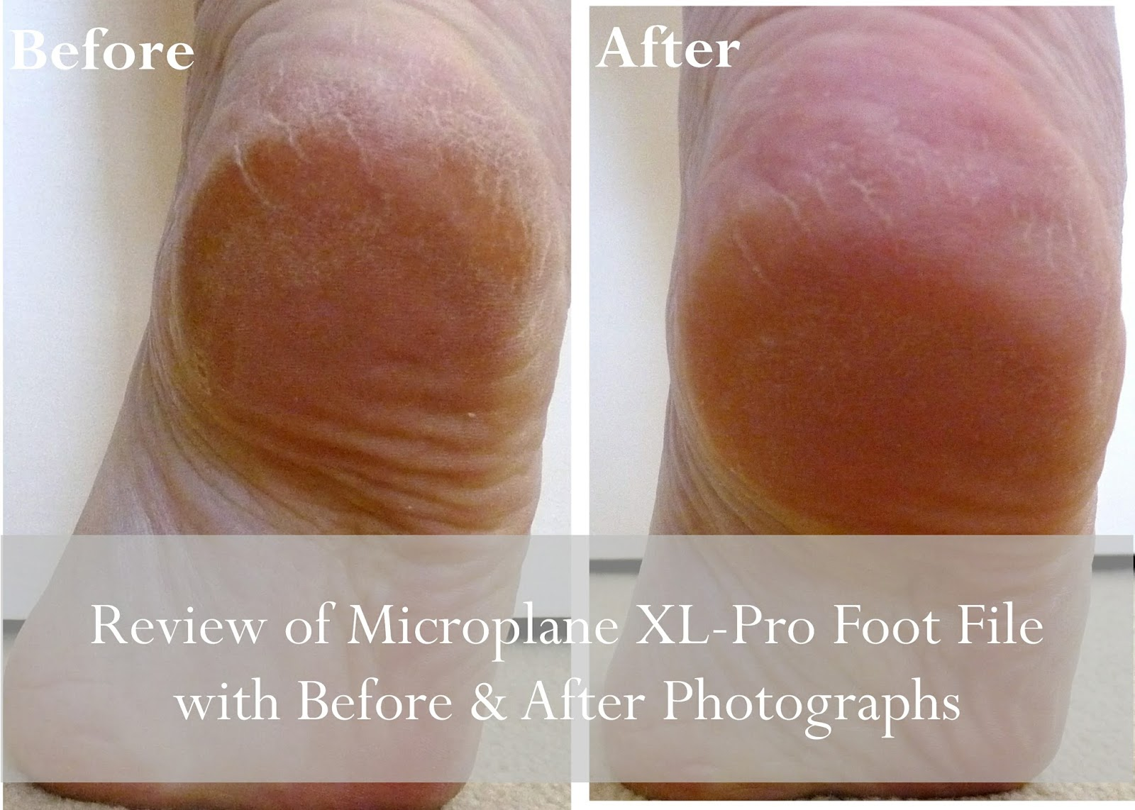 A Review of the Microplane XL-Pro Foot File Rasp with Before and After Shots