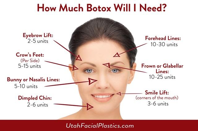 Bio-Ever Plus, Botox, Viagra, Manjakani, Ubat Kuat Lelaki, Ubat Ketat Faraj, Ubat asma, akedah tegang payudara, rawatan resdung, rawatan hilang ketulan di payudara, testimoni, byrawlins, health, beauty