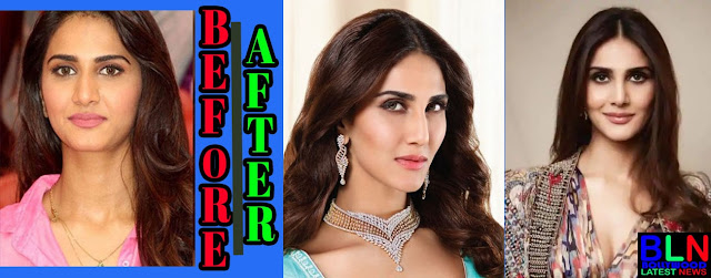 VAANI KAPOOR Bollywood Actresses Before and After Plastic Surgery