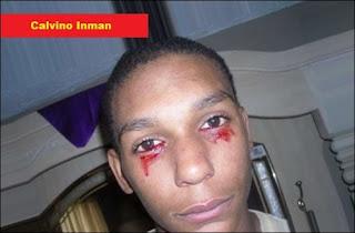 http://infomasihariini.blogspot.com/2015/12/inilah-foto-manusia-yang-mengeluarkan.html