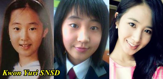 Kpop Star Kwon Yuri Snsd Plastic Surgery Before And After Kpop