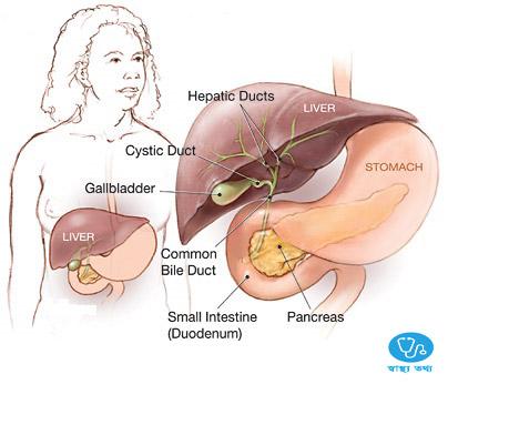 কোলেসিস্টাইটিস বা পিত্তথলির প্রদাহ,cholecystitis,cholecystitis meaning,cholecystitis in bangla