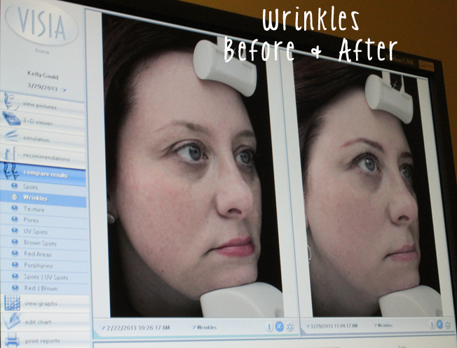DermaPen, anti-aging, non-invasive, before and after