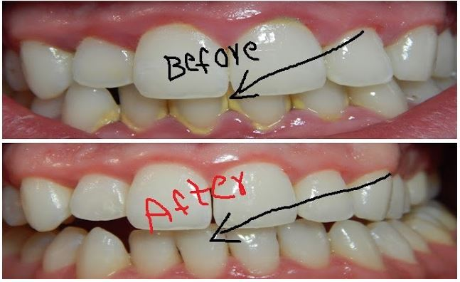 Remove Dental Plaque